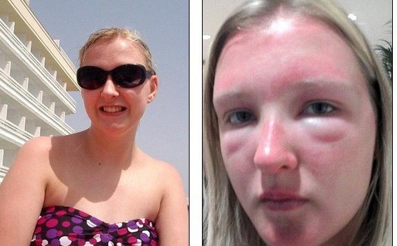 30532a48f703d Britânica compra óculos de sol barato e tem forte reação alérgica ...