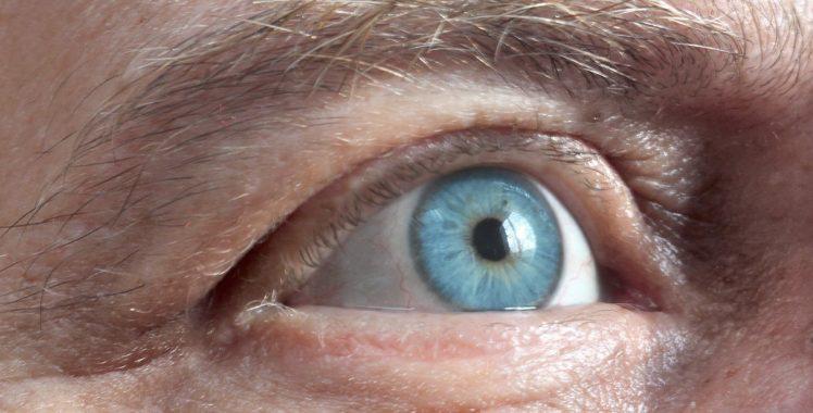 01e06764cd74f Caracterizada pela opacidade do cristalino, que resulta em sintomas como a  visão turva, a catarata pode ser tratada por meio de uma cirurgia.