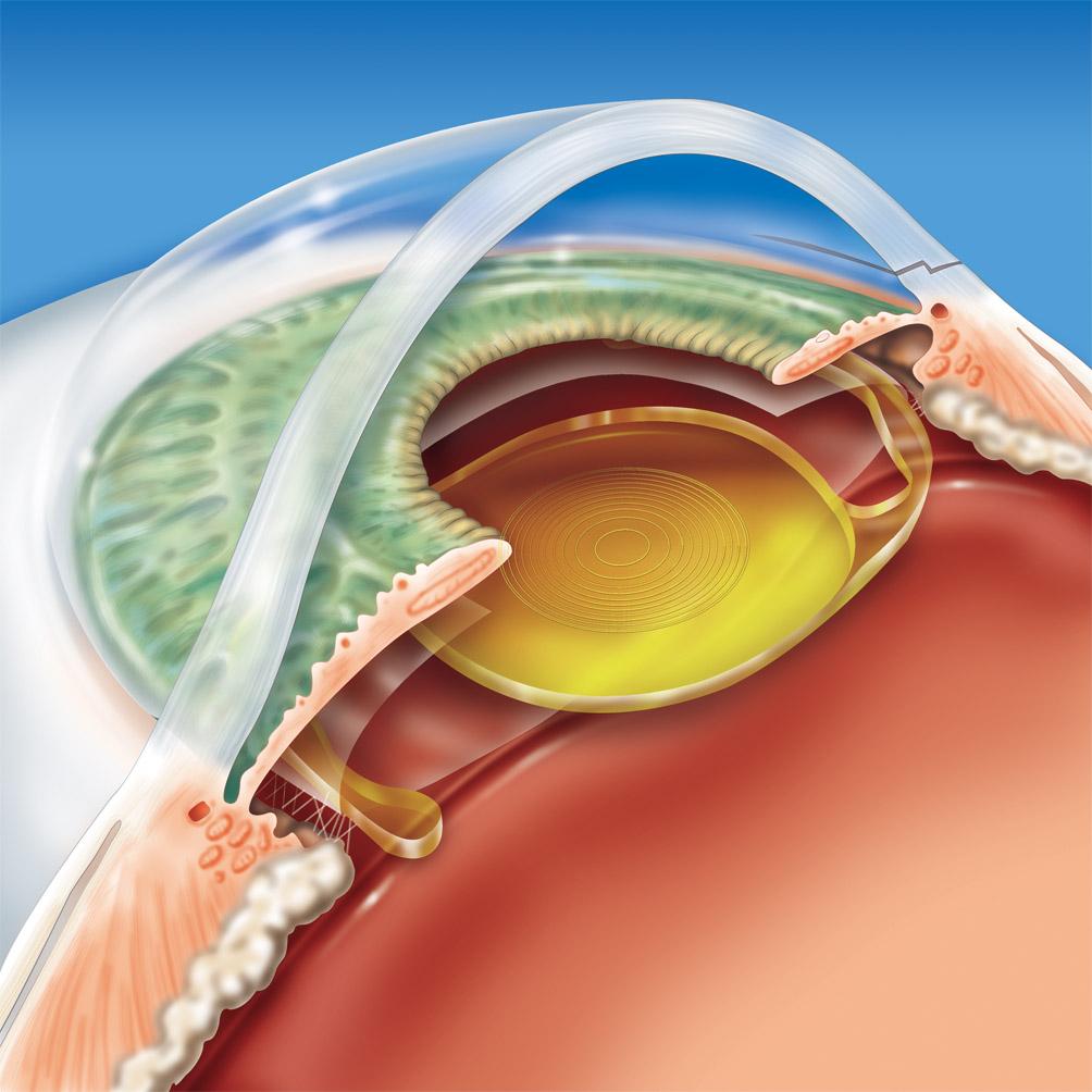 8eb44ea05 Conheça os tipos de lentes intra oculares para catarata | Lentes e ...