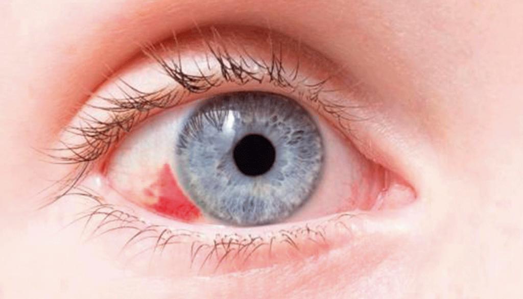 6f4f0cdb9 Quais são as causas e o tratamento para o derrame ocular?   Lentes e ...