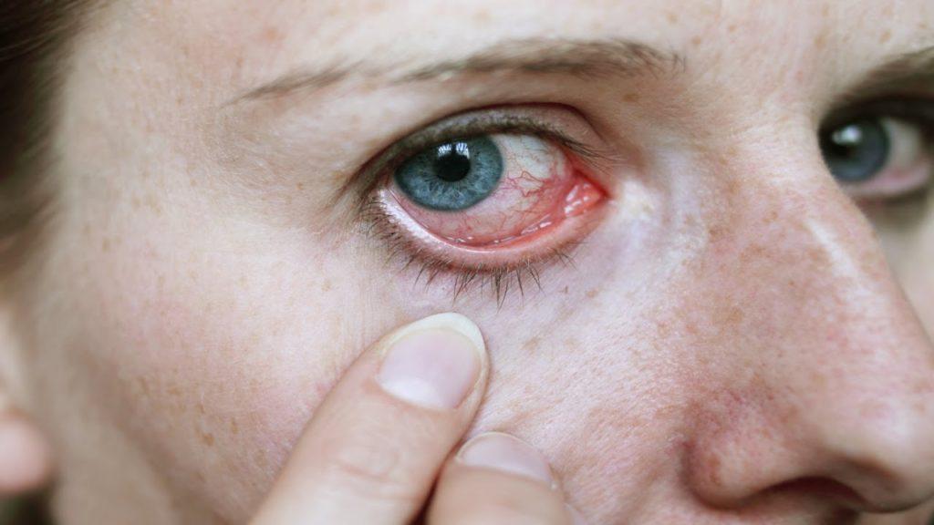 39c060b2b1f8a 5 tipos de infecção nos olhos
